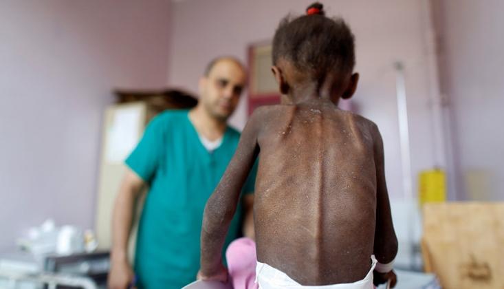 Yemen'de Bu Yıl Koleradan 913 Kişi Yaşamını Yitirdi