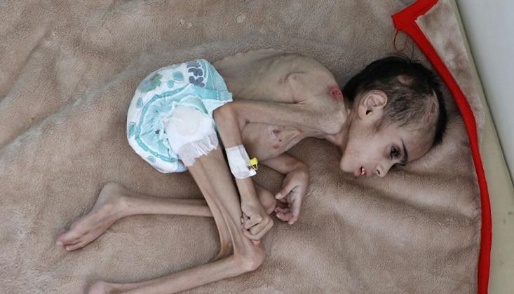 Yemenli Çocuk Açlık Nedeniyle Yaşam Mücadelesi Veriyor
