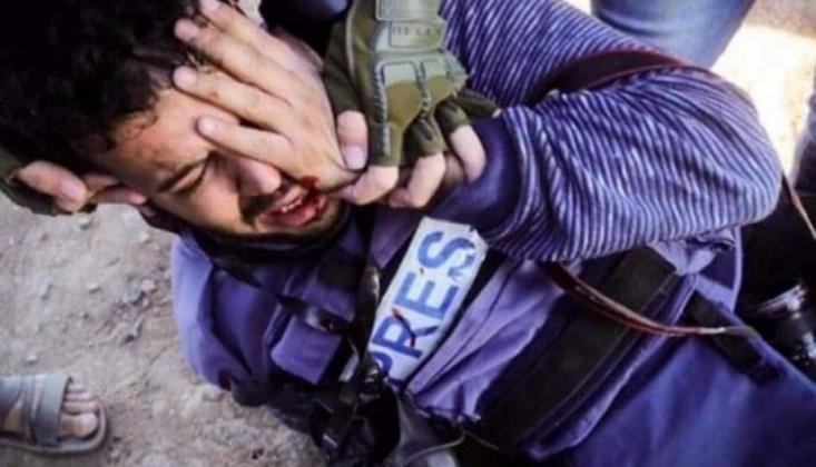 Siyonist Askerlerin Açtığı Ateş Sonucu Göstericiler Gözlerini Kaybetti