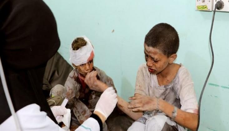 Suudi Koalisyon Topçu Saldırılarında Yine Birçok Yemenli Çocuk Öldü ve Yaralandı