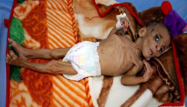 BM Genel Sekreterinden Yemen'e Acil Mali Yardım Çağrısı