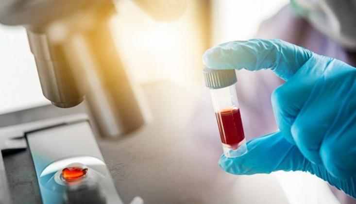 Toplumun Bağışıklık Oranını Tespit Etmek İçin Elisa Testleri Başlıyor