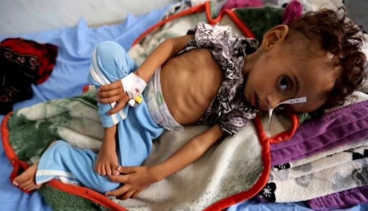 BM: Yemen'de Felaket İçin Geri Sayım Başladı
