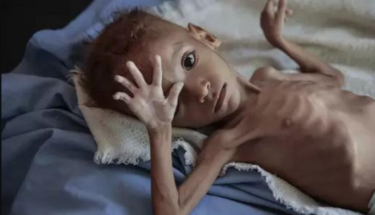 Yemenli 71 Bin Hasta Kuşatma Yüzünden Hayatını Kaybetti