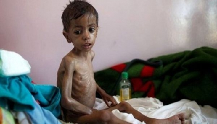 'Yemen'de Her 10 Dakikada Bir Çocuk Önlenebilir Hastalıklar Yüzünden Ölüyor'