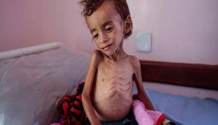 Milyonlarca Yemenli Çocuğu Toplu Ölüm Tehlikesi Pusuda Bekliyor