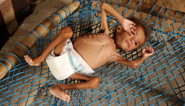 Günde 12 Bin Kişi Açlıktan Ölebilir