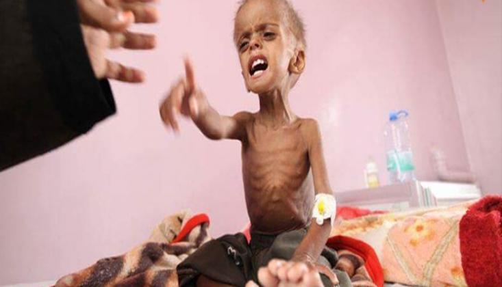 """""""Suudiler Patriot Alacaklarına Yemenli Çocuklara Yardım Etseydiler"""""""