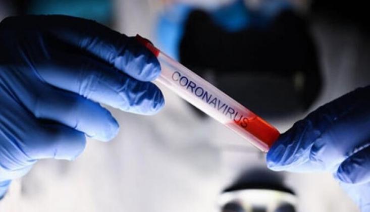 Koronavirüs Nedeniyle Ölenlerin Sayısı Dünya Genelinde 800 Bini Geçti