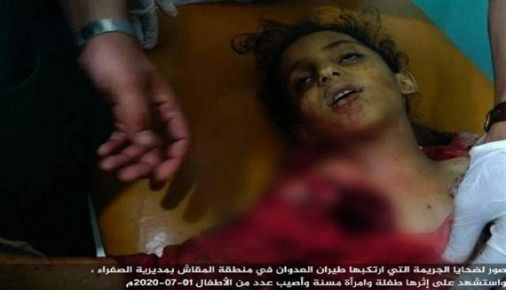 Çocuk Katili Suudi Koalisyon Bombalamaya Devam Ediyor
