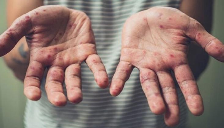 Milyonlarca İnsan Kızamık Riski Altında